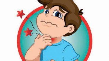 Il Dott. Clarizia di Politerapica racconta la tonsillite